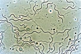 Penyebab Penyakit Kelamin Sipilis