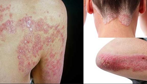 Image result for चर्म रोग