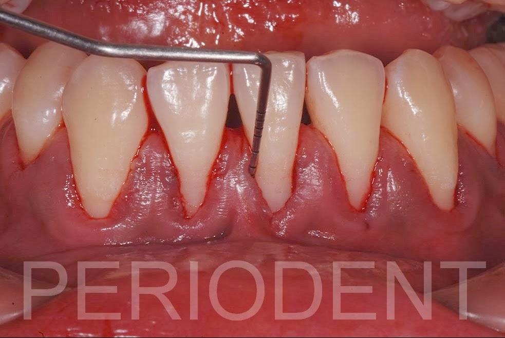 P E R I O D E N T = P E R I O + I M P L A N T: 陳柏堅醫師發表前下牙齒矯正後牙齦萎縮之處理