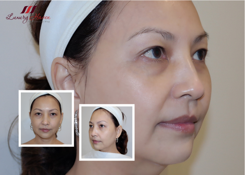 singapore beauty blogger reviews eha clinic crystal lift