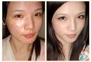 Tratamiento de ácido hialurónico en la belleza