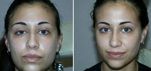 Types Of Laser Eye Surgery