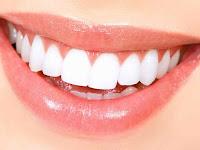 مشكل تسوس الأسنان, علاج تسوس الأسنان, تسوس الأسنان, دواء التسوس, علاج أمراض اللثة