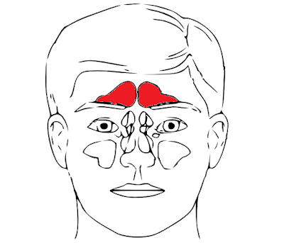 Sinus headache treatment and remedies