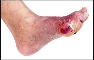 luka diabetes, amputasi, diabetes, diabetes mellitus, gangren, infeksi kaki, kaki diabetik, kencing manis
