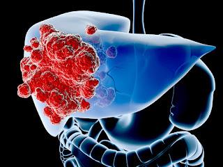 http://surgicalgastro.com/liver-cancer/