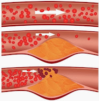 berbagai macam penyakit pembuluh darah