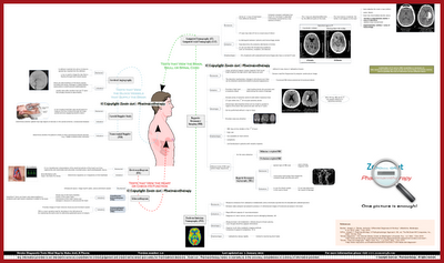 Stroke Imaging and Diagnostic Tests Mind Map