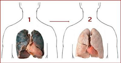 los pulmones y la nicotina