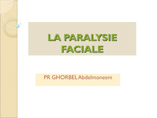 LA PARALYSIE FACIALE .pdf