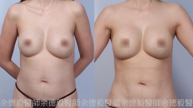 自體脂肪移植在隆乳後的應用