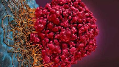 Cara Menyembuhkan Tumor Jinak Tanpa Operasi - Obat Sakit ...