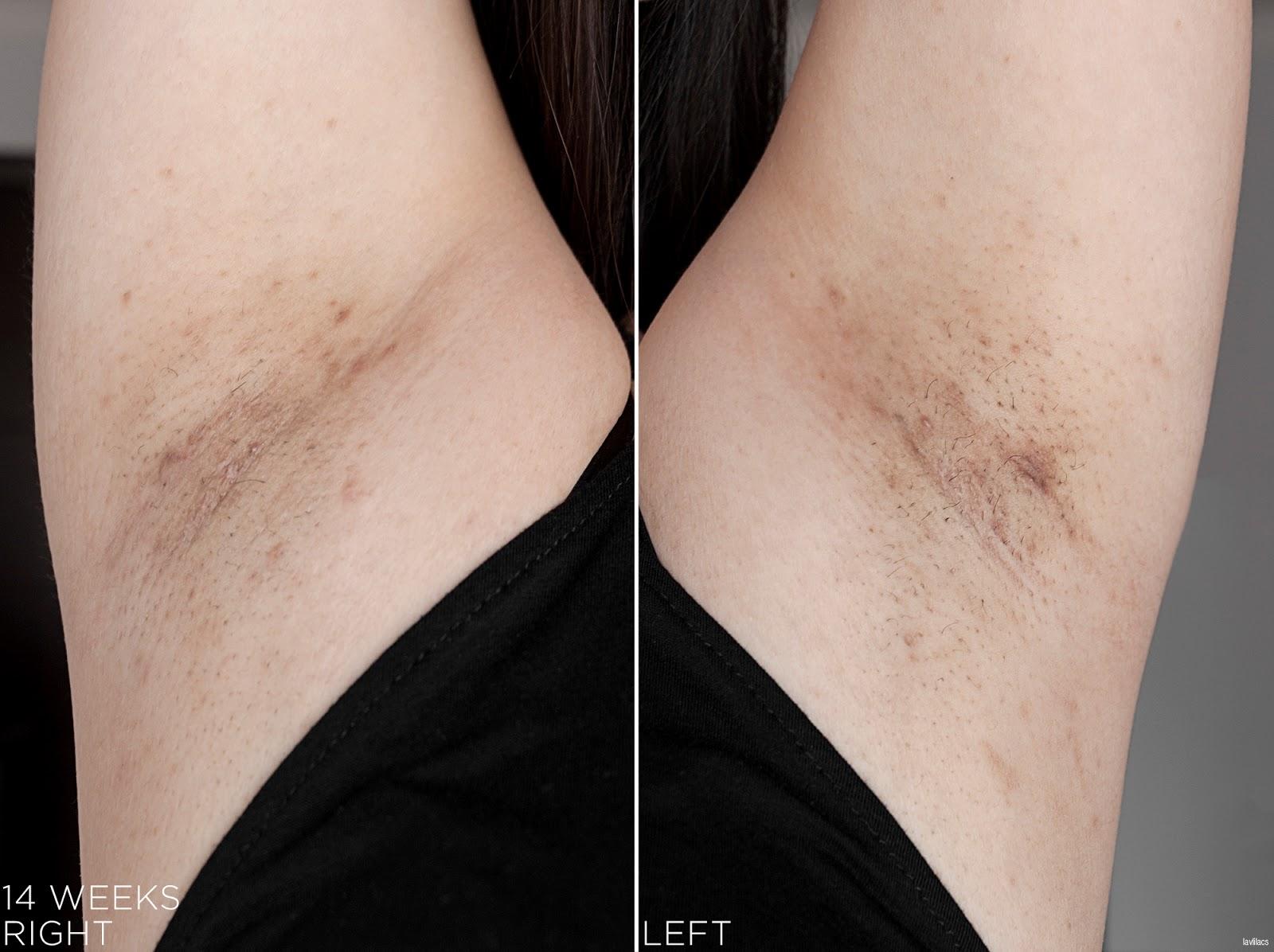 tria Hair Removal Laser Armpits Hair 14 Weeks, 3 months