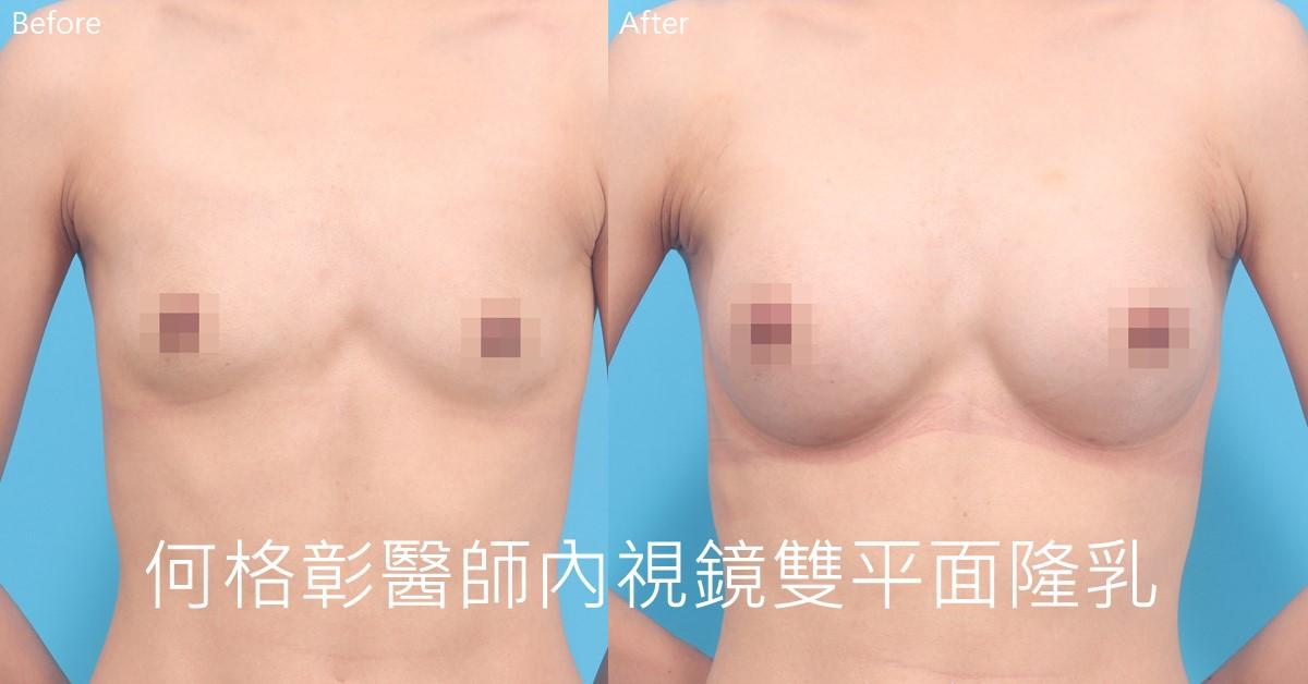 台中內視鏡隆乳推薦