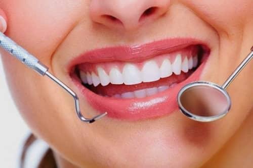 Biaya Membersihkan Karang Gigi di Puskesmas