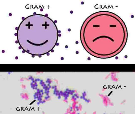 Gram Boyama Microbiology Laboratory Turkey