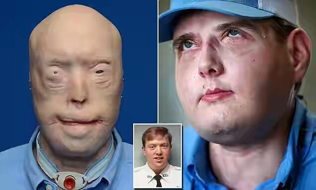 Graphic: Firefighter gets full face transplant after getting disfigured by fire