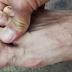 Esto Sucede Cuando Tienes Este Dedo Mas Grande Que Los De Mas