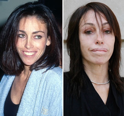 Chatter Busy Heidi Fleiss Plastic Surgery