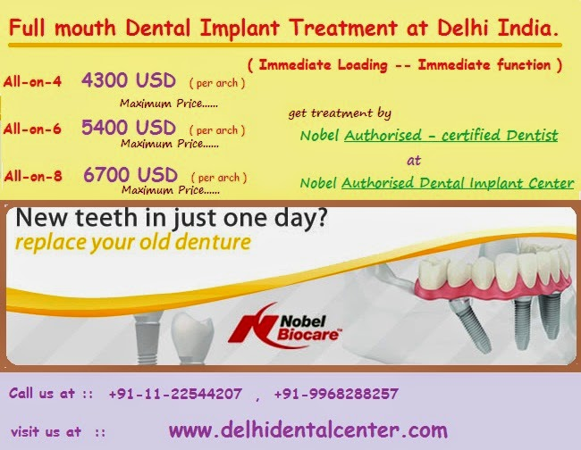 Immediate Function All-On-8 In India ~ Smile Designing Delhi