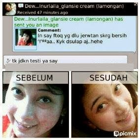 Testimoni Cream Dr Fajar Glansie Normal