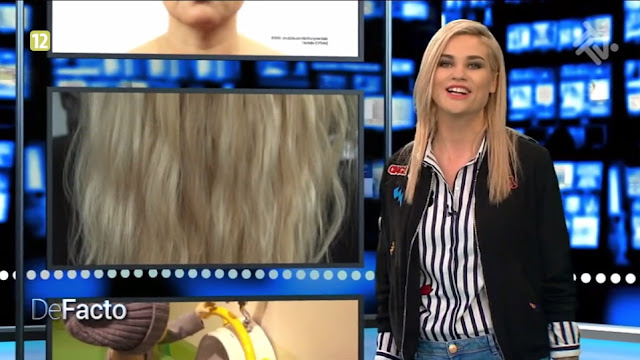 De Facto - włosy - trychologia
