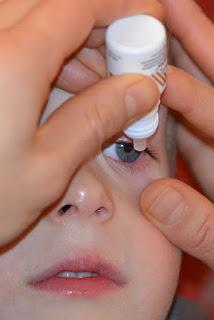 allergic conjunctivitis symptoms