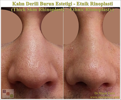 Thick skin rhinoplasty in İstanbul - Rhinoplasty in İstanbul - Thick skin nose job - Etnik burun estetiği - Ethnic rhinoplasty - Ethnic nose job in İstanbul, Turkey