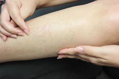 como tratar a foliculite, bolinhas nas pernas, depilação, pele irritada, tratar a pele irritada