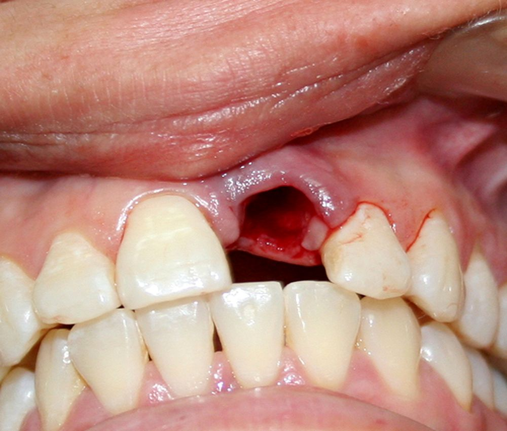 exodoncias-farmacologia