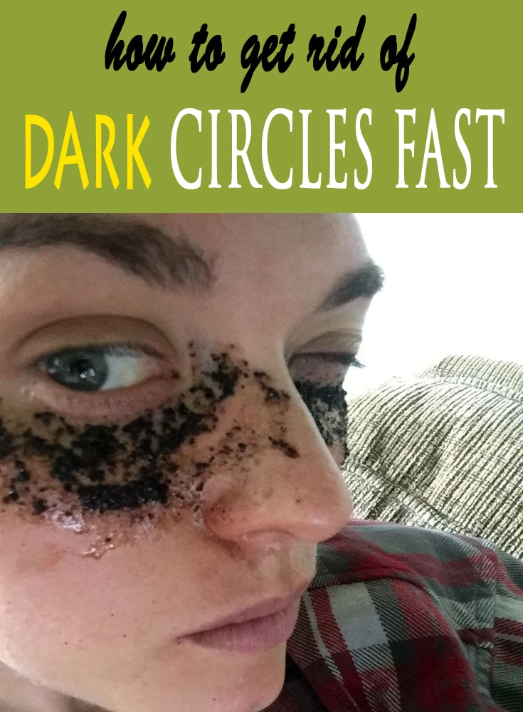 How To Get Rid Of Dark Circles Under Eyes Fast Best ...