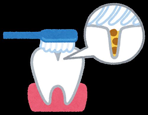 歯の溝の汚れのイラスト