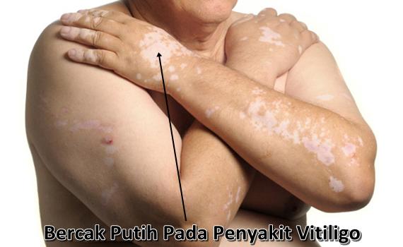 Cara Cepat Menghilangkan Vitiligo Sampai Sembuh