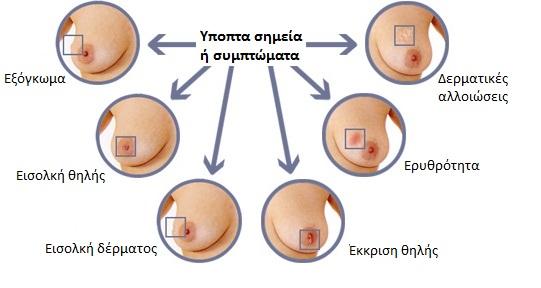 Ηγουμενίτσα: Ενημερωτική εκδήλωση με θέμα «Παθήσεις Μαστού»