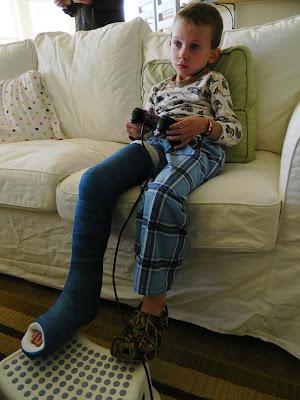 Home Kids Life A Kid In A Leg Cast