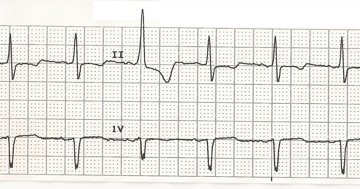 Float Nurse: EKG Rhythm Strips 39