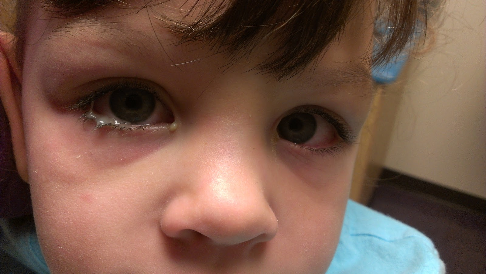 I think one of the worst things as a parent is not being able to take away  their sicknesses or instantly heal them. And for us, pink eye was that  sickness ...