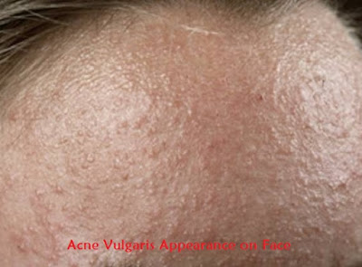 Acne Vulgaris Appearance on Face