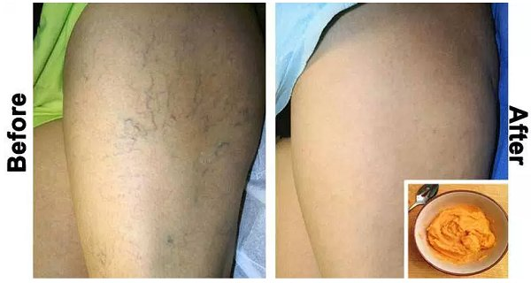 The Most Effective Natural Treatment for Varicose Veins