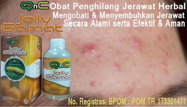 Obat Alami Penghilang Jerawat Kecil-kecil Di Wajah (Dahi, Jidat & Pipi) Herbal QnC Jelly Gamat