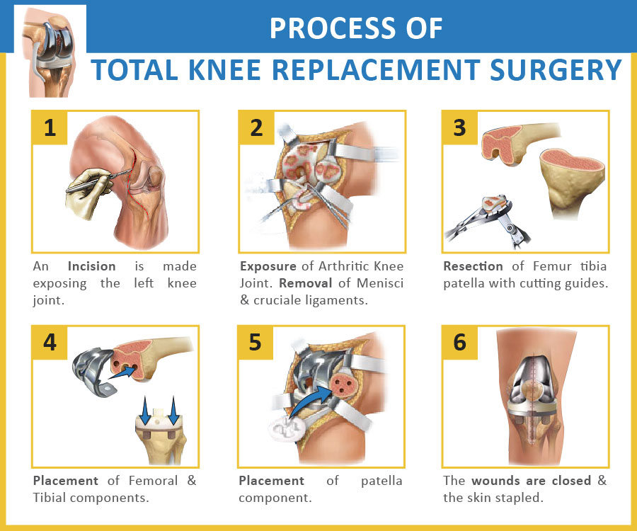 Physio Knowledge : Total Knee Replacement Rehabilitation