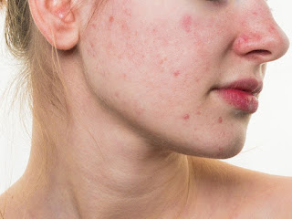 acne cure, acne treatment, good acne cure