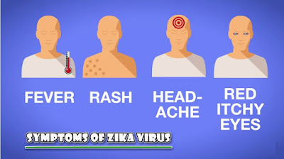 symptoms of zika virus