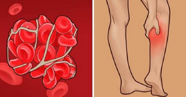 6 Warning Signs You May Have A Blood Clot