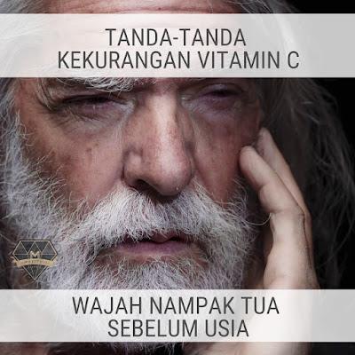 Tanda Kekurangan Vitamin C - Wajah Nampak Tua Sebelum Usia