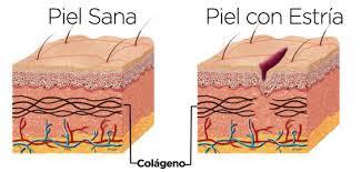 imagen de un tejido sano y otro con estría por fractura del tejido de colágeno