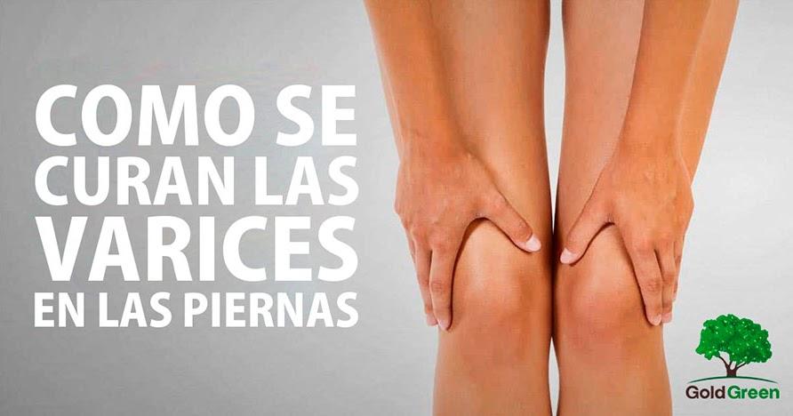 Para el dolor las medicamentos piernas varices en de