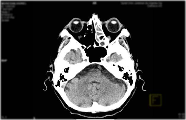 Pansinusitis on the left side - CT Scan ~ Medicine Hack  Pansinusitis