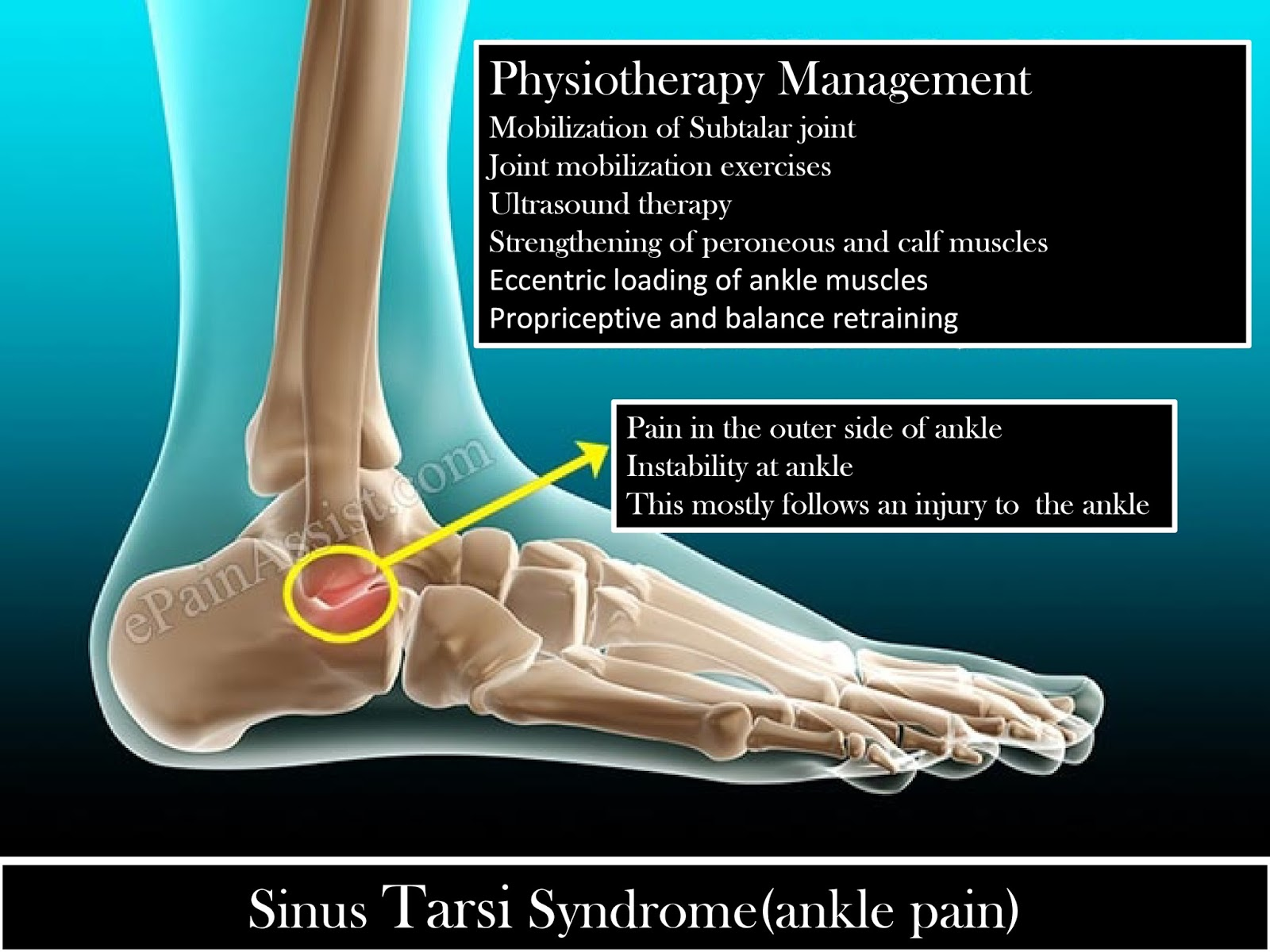 Y Raphah Physiotherapy Clinic in Pammal : Sinus tarsi