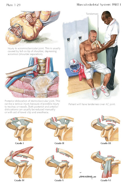 ACROMIOCLAVICULAR AND STERNOCLAVICULAR DISLOCATION